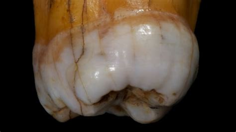 Denisovans: Ancient teeth reveal more about mysterious