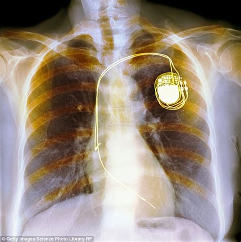 Is turning off a pacemaker ever the right thing to do